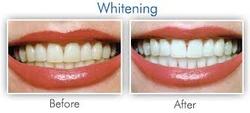 cosmetic bleaching
